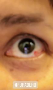 Fura olhos